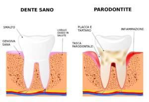 Chirurgia Paradontale