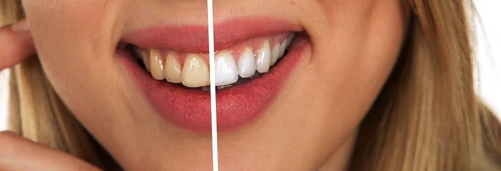 Seduta di igiene dentale 5