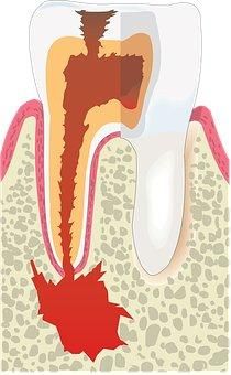 Seduta di igiene dentale 8